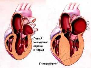 Гипертрофия левого желудочка сердца: лечение народными средствами и причины болезни