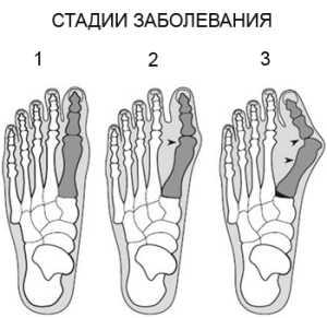Артроз большого пальца ноги лечение народными средствами