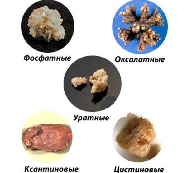 Народные средства от камней в почках у мужчин