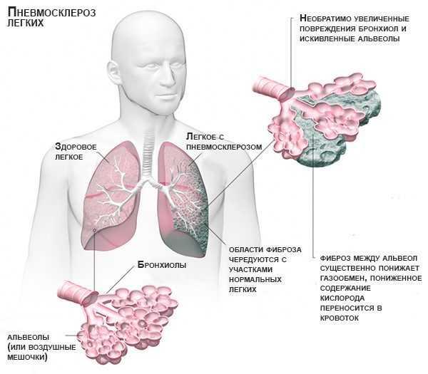 Народное лечение пневмосклероза